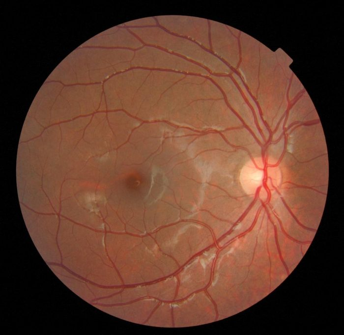 Close-up image of a retina against black background